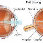 Sự khác nhau giữa cận thị, loạn thị và viễn thị