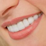 Sự khác nhau giữa các loại răng sứ