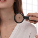 Nốt ruồi và tàn nhang – Những điểm khác biệt