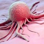 Sự khác nhau giữa hóa trị và xạ trị trong điều trị ung thư