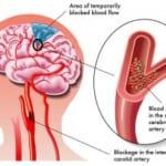 Phân biệt nhồi máu não và xuất huyết não